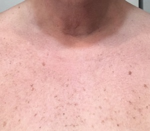 Gold Bond neck & Chest cream 3-4-18 photo